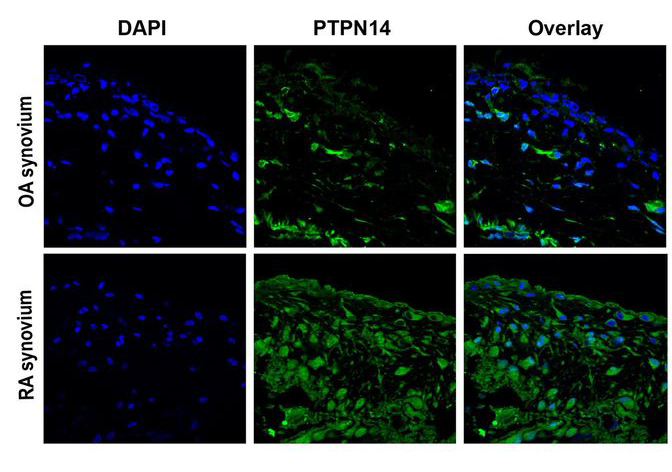 PTPN14 phosphatase and YAP promote TGFβ signalling in rheumatoid synoviocytes